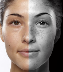 UVA Damaged Skin