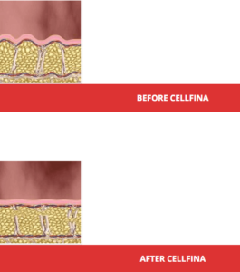 cellfina before after