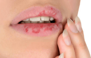 cracked lips remedy fast