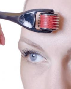 dermarolling forehead