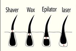 Which method removes hair the best?